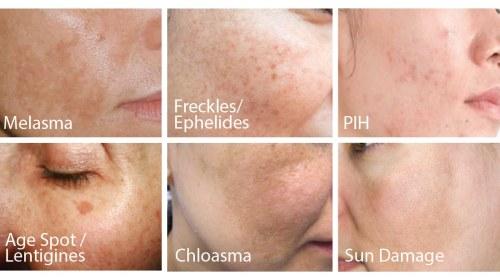 Do you know your pigmentation?